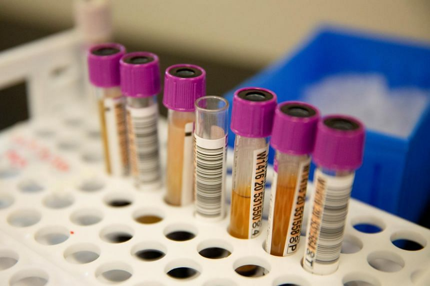 Convalescent plasma samples before being tested for Covid-19 antibodies in Renton, Washington, on Sept 9, 2020.