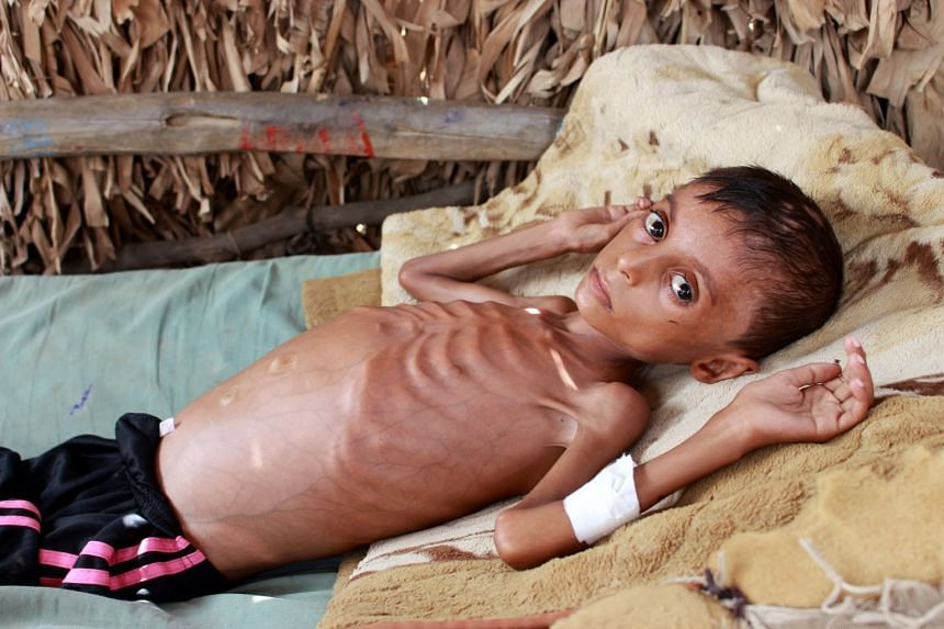 Malnourished Hassan Merzam Muhammad lies on a bed at his house in Hajjah province, Yemen in July 2020.