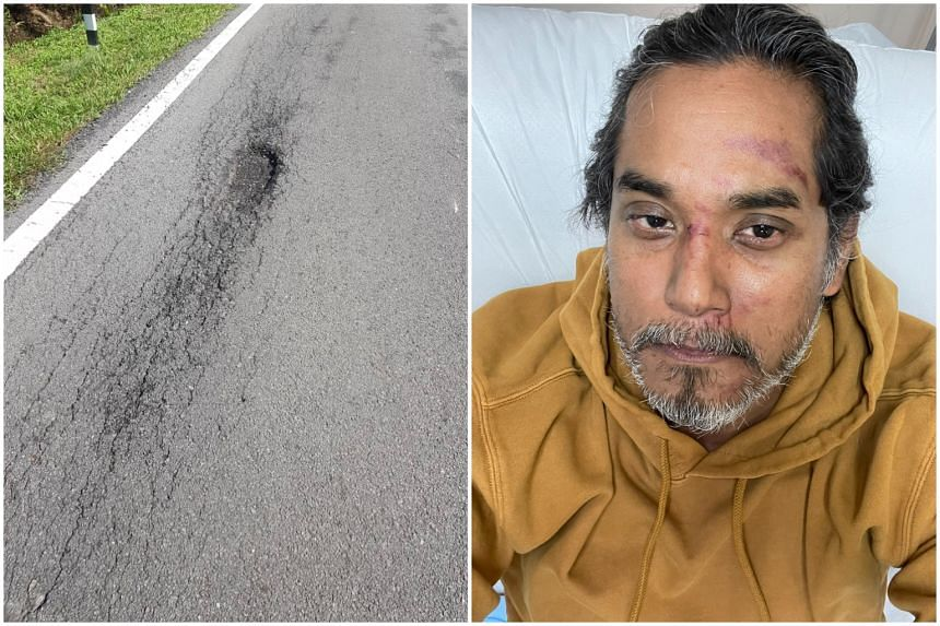 Malaysia's Science, Technology and Innovation Minister Khairy Jamaluddin Abu Bakar posted pictures of his bruised face and the culprit: a pothole on the side of road near a ditch.