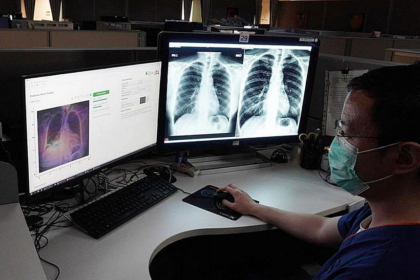 There are benefits to artificial intelligence technologies like this one which can predict the severity of pneumonia in a patient based on an X-ray image. But AI can also run amok with unintended outcomes.