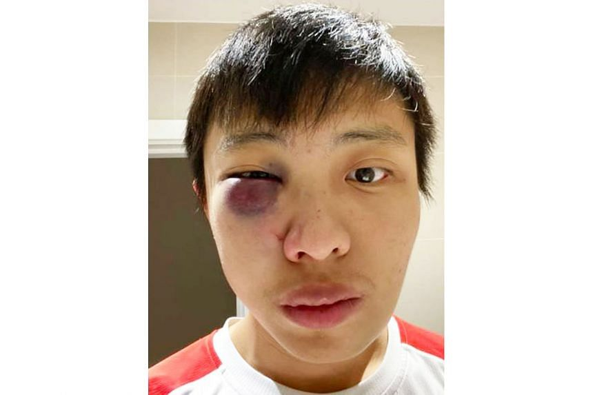 Mr Jonathan Mok was attacked in London last February, and needed surgery for his facial injuries.