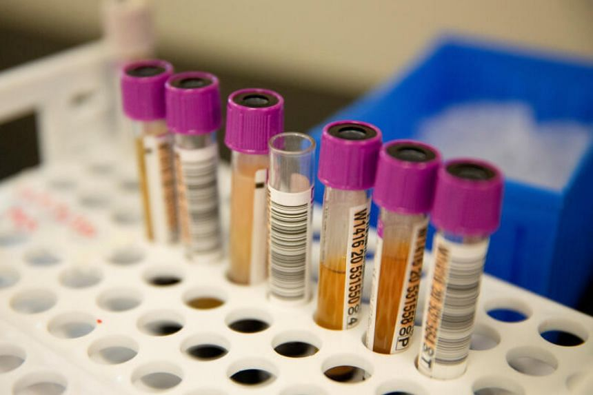 In convalescent plasma therapy, the blood plasma is given to infected patients to help them recover faster.