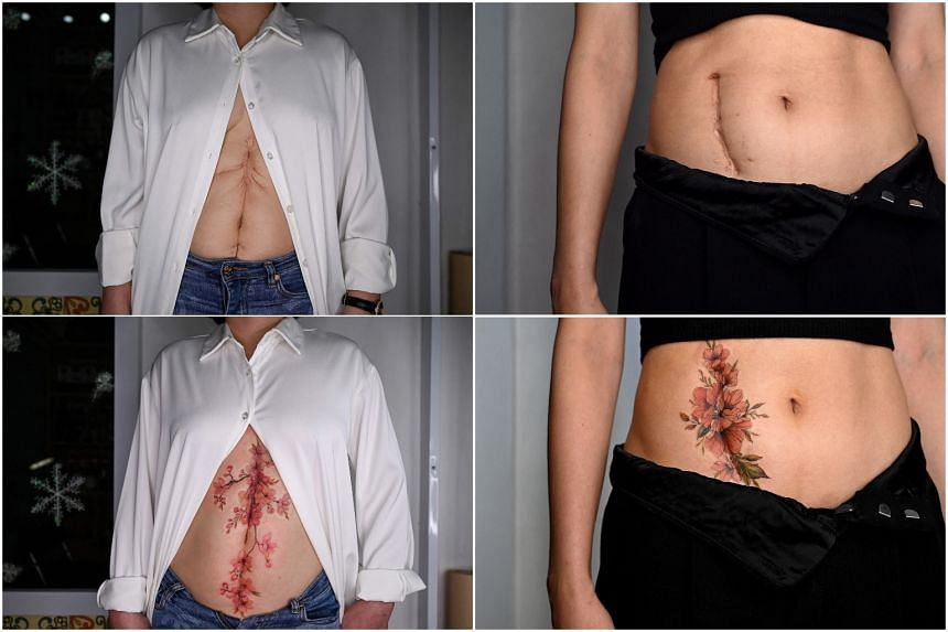 Customers' scars before (top) and after a tattoo procedure at tattoo artist Ngoc Like's studio in Hanoi.