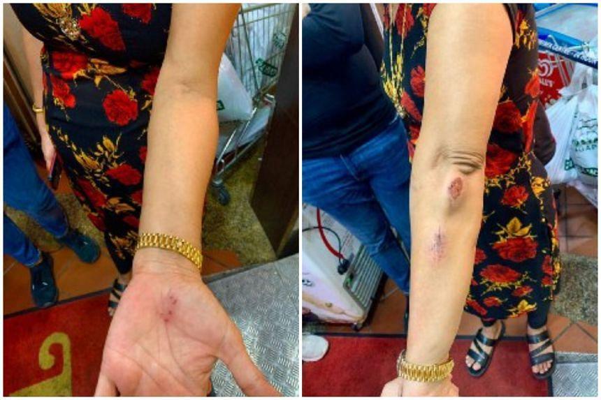 Mrs Hindocha Nita Vishnubhai was brisk walking on her usual route from Choa Chu Kang MRT station to Choa Chu Kang Stadium when she was assaulted by a man on May 7, 2021.