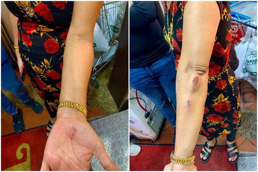 Madam Hindocha Nita Vishnubhai was assaulted while brisk walking from Choa Chu Kang MRT station towards Choa Chu Kang stadium on May 7, 2021.