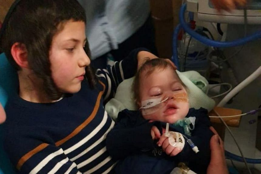 Two-year-old Alta Fixsler, seen here with her brother, has a serious brain injury.