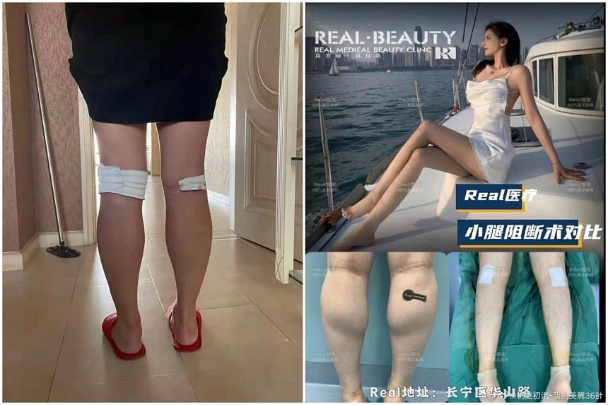 User Dahongshu (left) complained on Instagram-like Xiaohongshu that her legs felt weak after a controversial procedure to slim her calves. The procedure has since been outlawed in China.