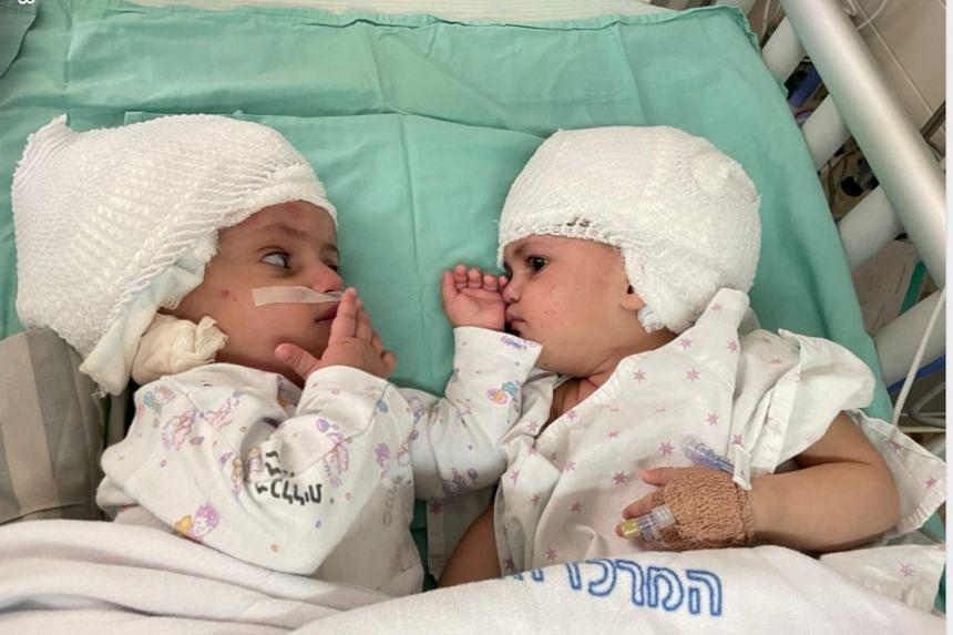 Formerly siamese Israeli twins after having undergone rare separation surgery at Soroka Medical Centre, Beersheba on Sept 5, 2021.