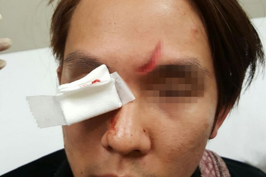 Mr Chow suffered a 4cm-long gash after a trick by a Turkish ice cream seller apparently went awry.