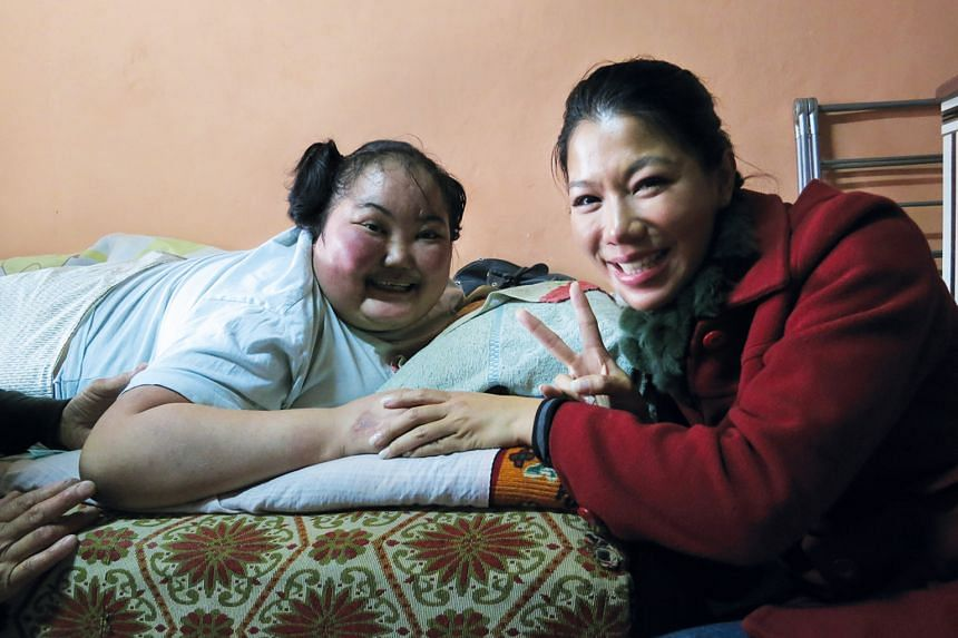 """""""Duurengaral gave me the most beautiful smile in the world. She was a dying patient who was fighting to live. I was a healthy human being who wanted to die. There was that irony."""" —BELINDA LEE on her most memorable episode in Mongolia, featuring Du"""