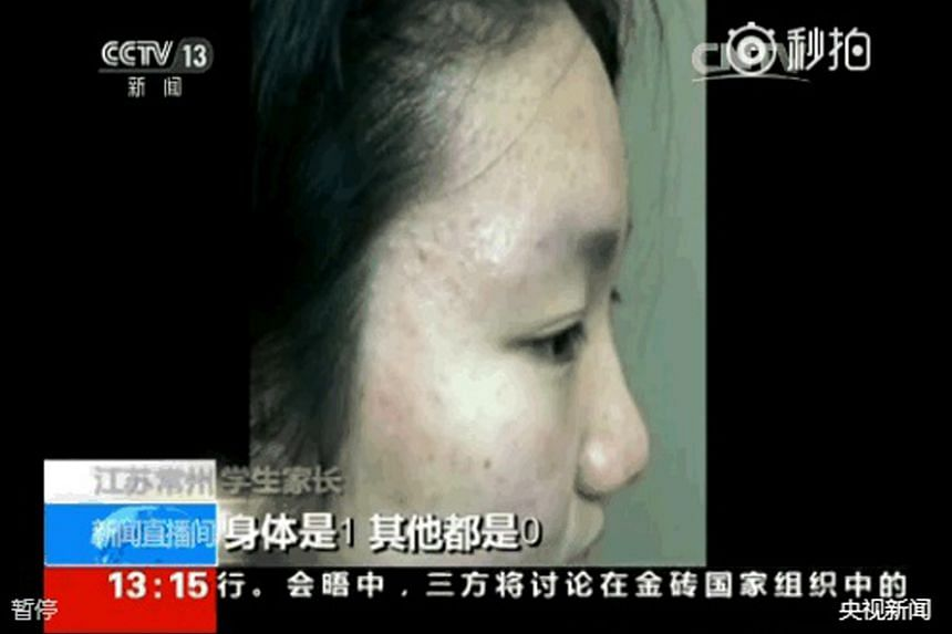 Two screen grabs taken off Sunday's CCTV broadcast show skin abnormalities and marks on affected students of Changzhou Foreign Languages School. It was reported that soil and groundwater in the area were found to contain toxic compounds and heavy met
