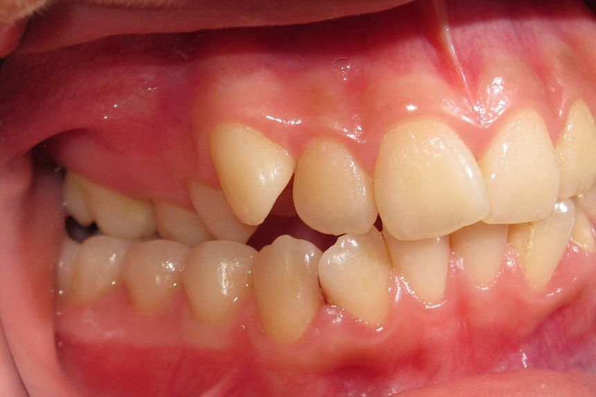 A fixed appliance is used to widen the upper jaw to correct a posterior crossbite  (above).