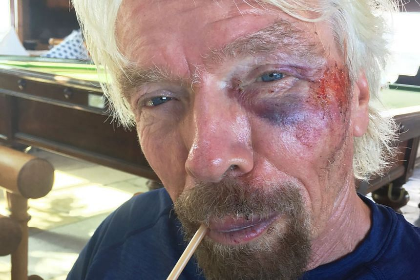 Mr Branson said he thought he was going to die in the biking accident in the British Virgin Islands last week. He suffered injuries to his cheek and torn ligaments.