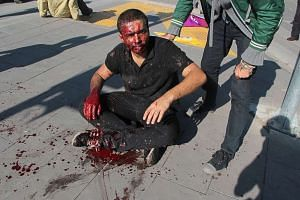 An injured man sits on the ground following the blasts in Turkey's capital Ankara.