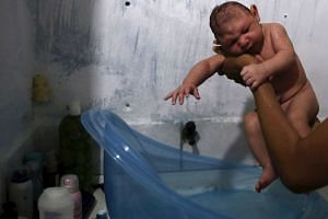 Daniele Santos, 29, holds her son Juan Pedro who is 2-months-old and born with microcephaly, after bathing him at their house in Recife, Brazil on Feb 9, 2016.