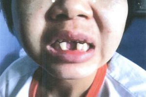 Indonesian maid Khanifah showing her broken two front teeth.