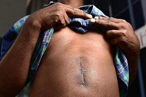 Welder S. Kumar showing the scar from surgery last month to treat a gastrointestinal perforation. His company wants to send him back to India to recuperate.