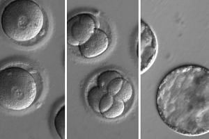 A sequence of the development of embryos after co-injection of a gene-correcting enzyme and sperm from a donor with a genetic mutation known to cause hypertrophic cardiomyopathy.