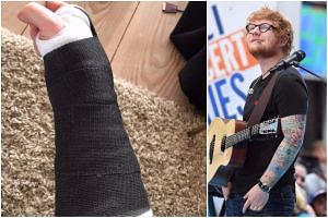 Ed Sheeran had fractures in his right wrist and left elbow after a bicycle accident.