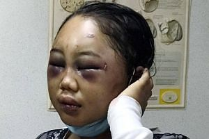 Ms Suyanti Sutrinso was found hurt and unconscious after escaping from her employer's house.