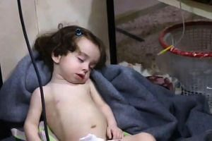 A Syrian child at a hospital following a reported chemical attack on the rebel-held town on April 8, 2018.