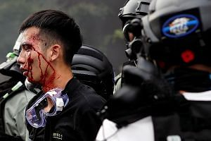 Police detaining an injured protester at the campus of Hong Kong Polytechnic University on Monday. The violence by both sides in Hong Kong has rapidly escalated, say the writers. And responsibility for the escalation lies mainly with the government a