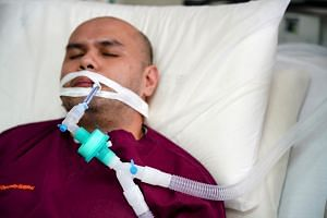 A breathing tube inserted into the windpipe via the mouth.