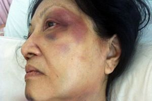 Madam Toh in hospital after being attacked by her neighbour outside her flat in 2013. Haunted by memories of the attack, she cannot fall asleep sometimes, and used to wake up in the middle of the night screaming.