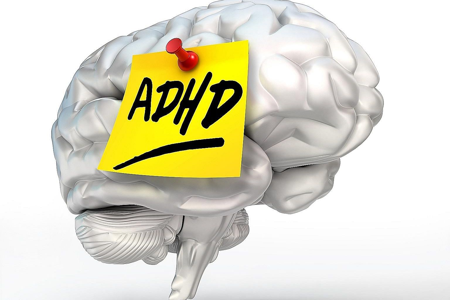 ADHD is caused by a delay in maturation involving parts of the brain responsible for attention control and behaviour inhibition.