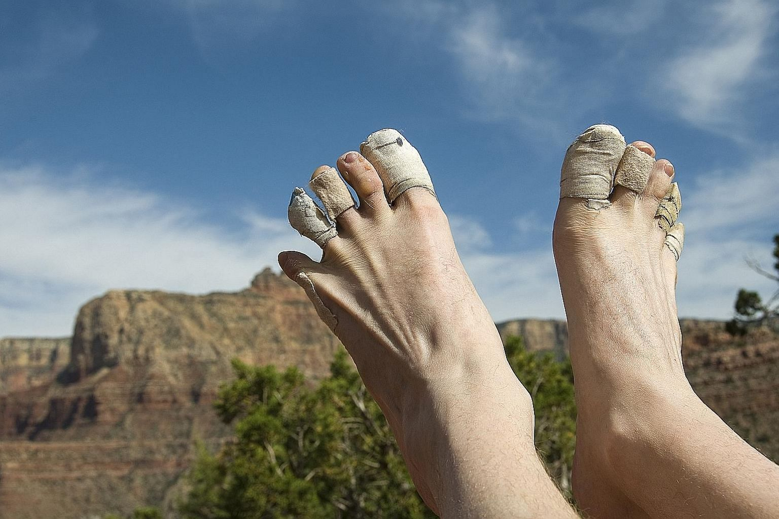 Blisters caused by skin friction affect endurance runners.