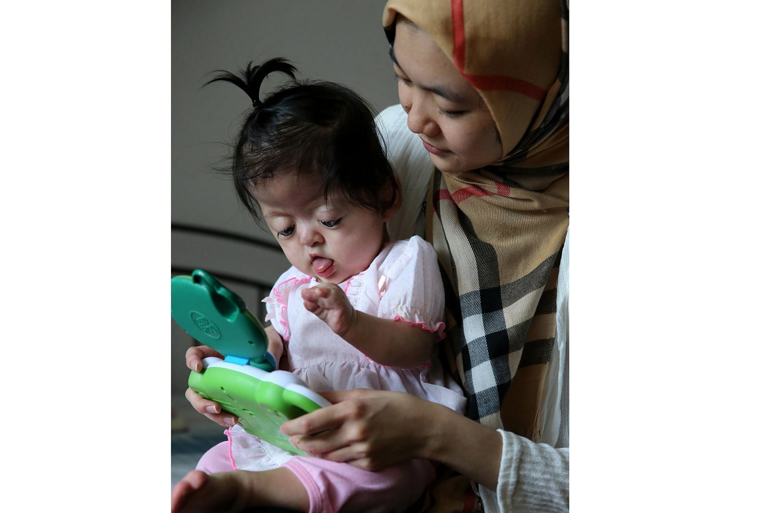 Madam Duong Thi Hai Nhi with her baby daughter, who was born with Apert syndrome - a genetic disorder where the skull does not grow normally and the fingers are fused together.