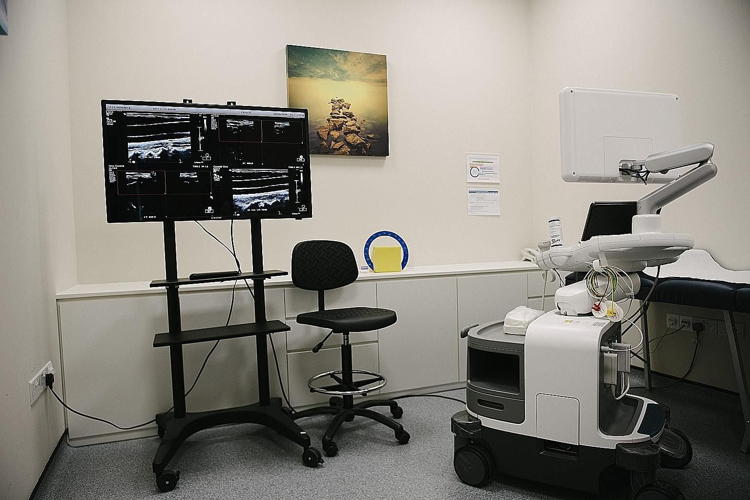 A 3D ultrasound machine used for carotid artery screening. Participants of the Health for Life in Singapore (Helios) study will go through comprehensive health screening, including full brain and body scans.
