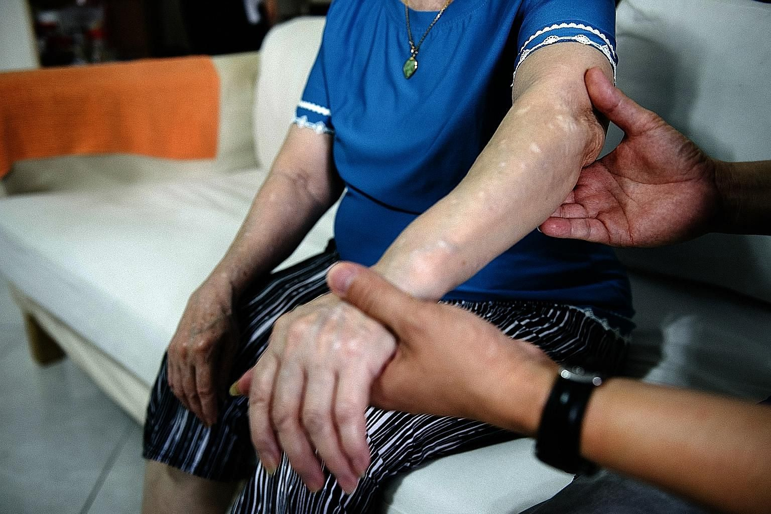 """Mr Chua Juay Peng showing the marks on his mother Low Meow Luan's arms that came from her burning herself with joss sticks. It was her way to get rid of the """"insects"""" she believed were roaming freely on her body. With treatment, Madam Low has improve"""