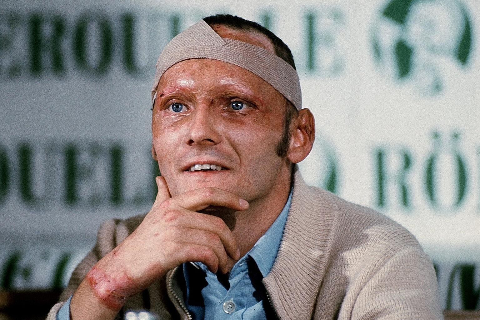 Niki Lauda, bearing the horrific scars of the Nurburgring crash in 1976, returned to racing less than six weeks later. PHOTO: DPA