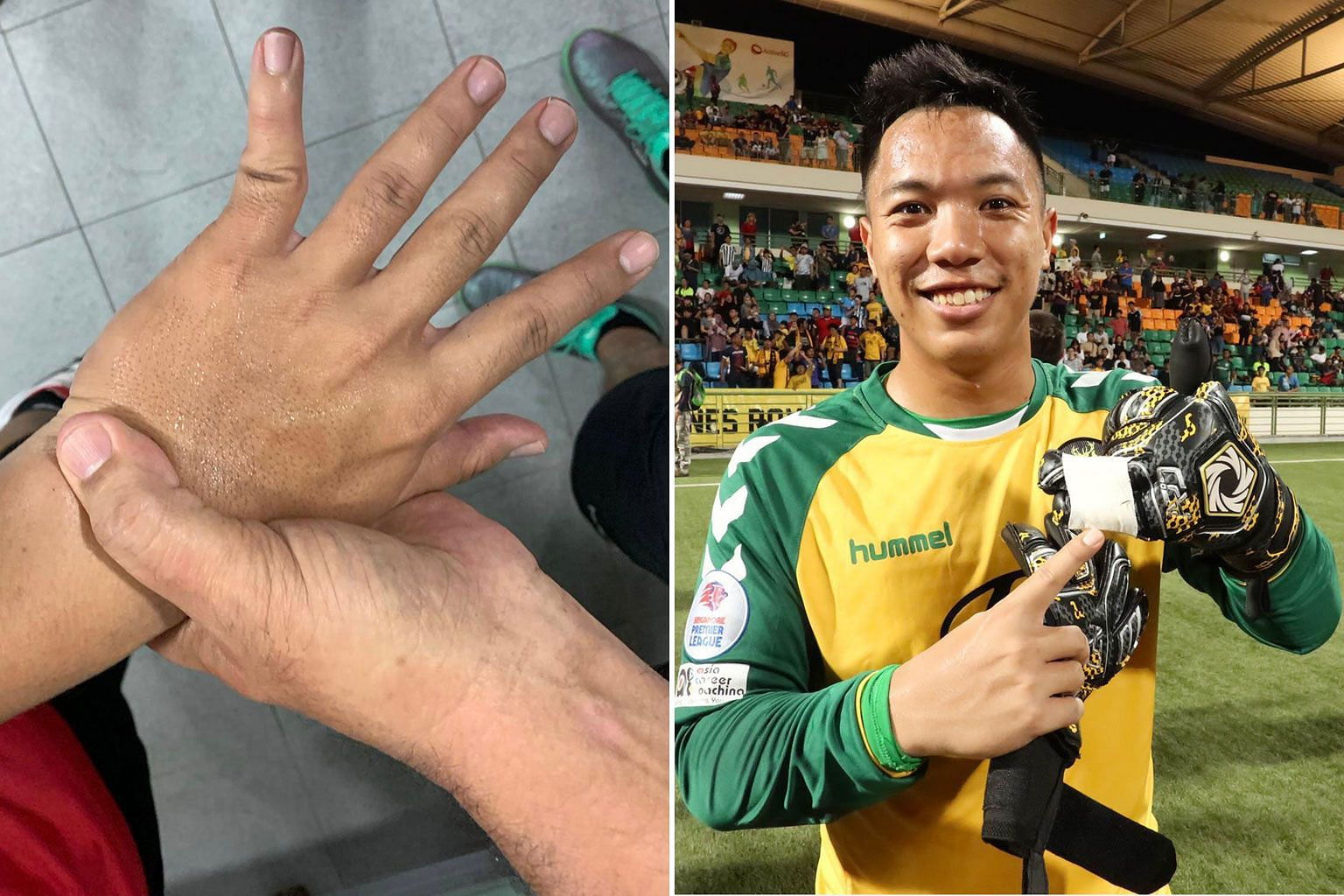 Tampines goalie Syazwan Buhari popped his left little finger (left) back into place and played with his last two fingers taped together (below) in the Singapore Cup final. PHOTOS COURTESY OF SYAZWAN BUHARI
