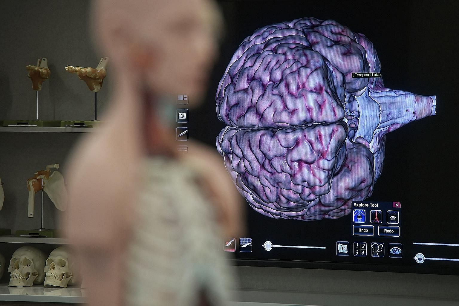 """Ms Lovely Fernandez signed up to donate her brain after her death, as she hopes to help scientists in their research. A projection of the """"Anatomage"""", a virtual dissection tablet, during the launch of Singapore's first brain bank, named Brain Bank Si"""