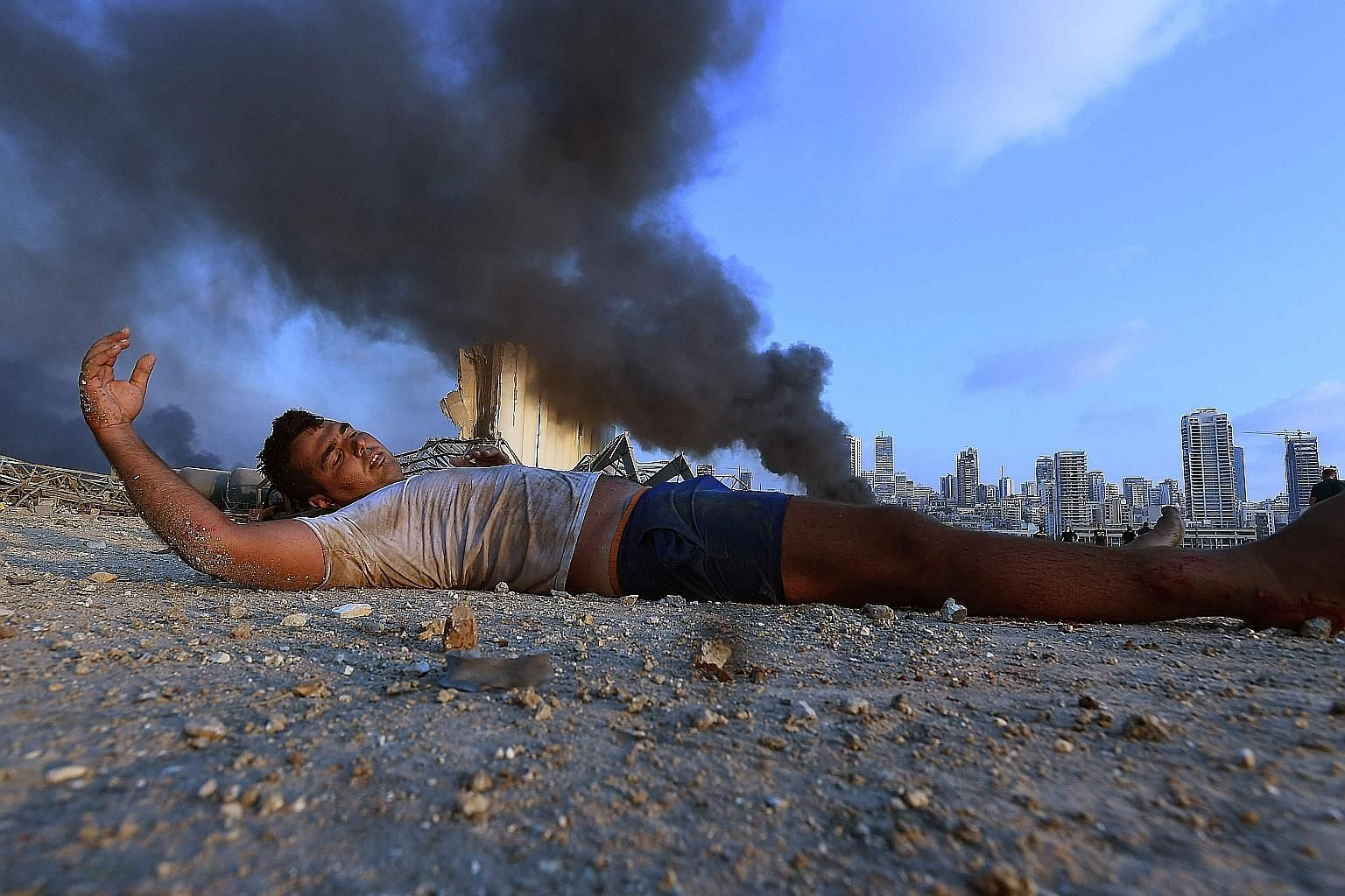A boy lying injured amid debris as smoke billowed in the background at the scene of a massive explosion that hit the port of Beirut in the heart of the Lebanese capital on Tuesday. Lebanon will need a rapid influx of aid to stave off a critical food