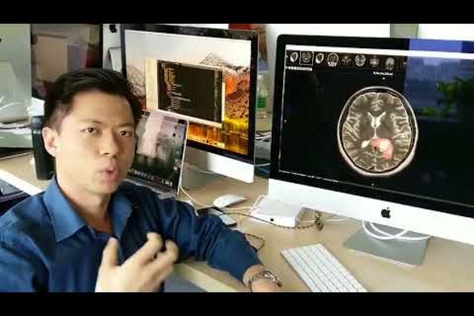 Hanalytics chief Raymond Moh explains how Biomind helps doctors diagnose neurological conditions