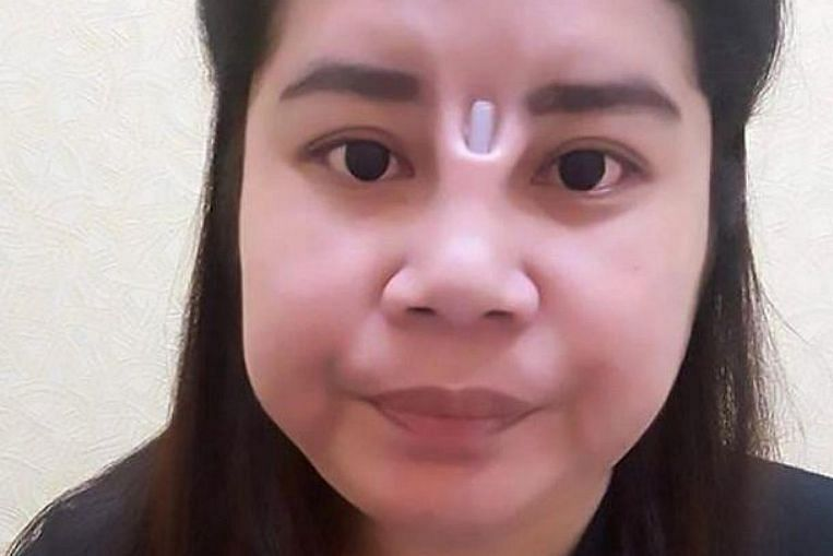 Botched Plastic Surgery Leaves Thai Woman With Additional
