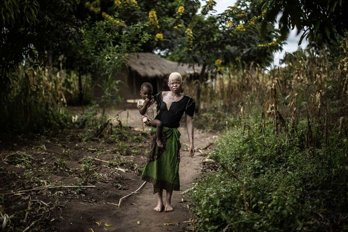 Mainasi Issa, a 23-year-old Malawian albino woman carries her two-year-old daughter Djiamila Jafali outside her hut in the traditional authority area of Nkole, Machinga district, on April 17, 2015.