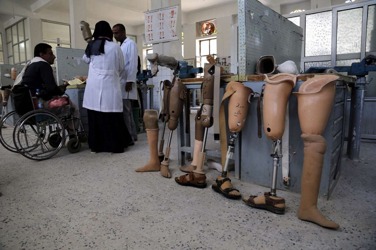 Doctors preparing a prosthetic limb for a disabled man in Sana'a, Yemen on Dec 28, 2015.