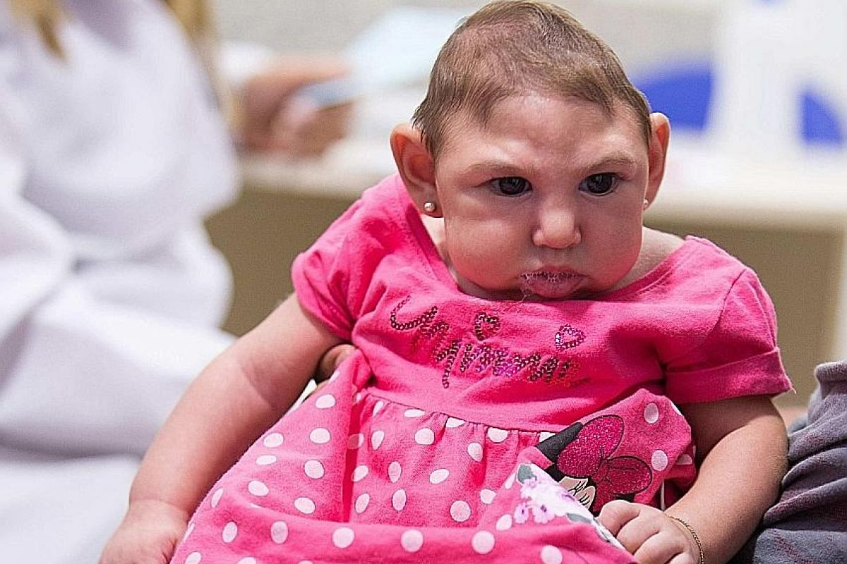 Little Ana Beatriz, who suffers from microcephaly, in her father's arms during a medical appointment in Recife, Brazil. Prognoses for children with microcephaly vary widely, with 10 per cent suffering no mental deficits, reported The New York Times.