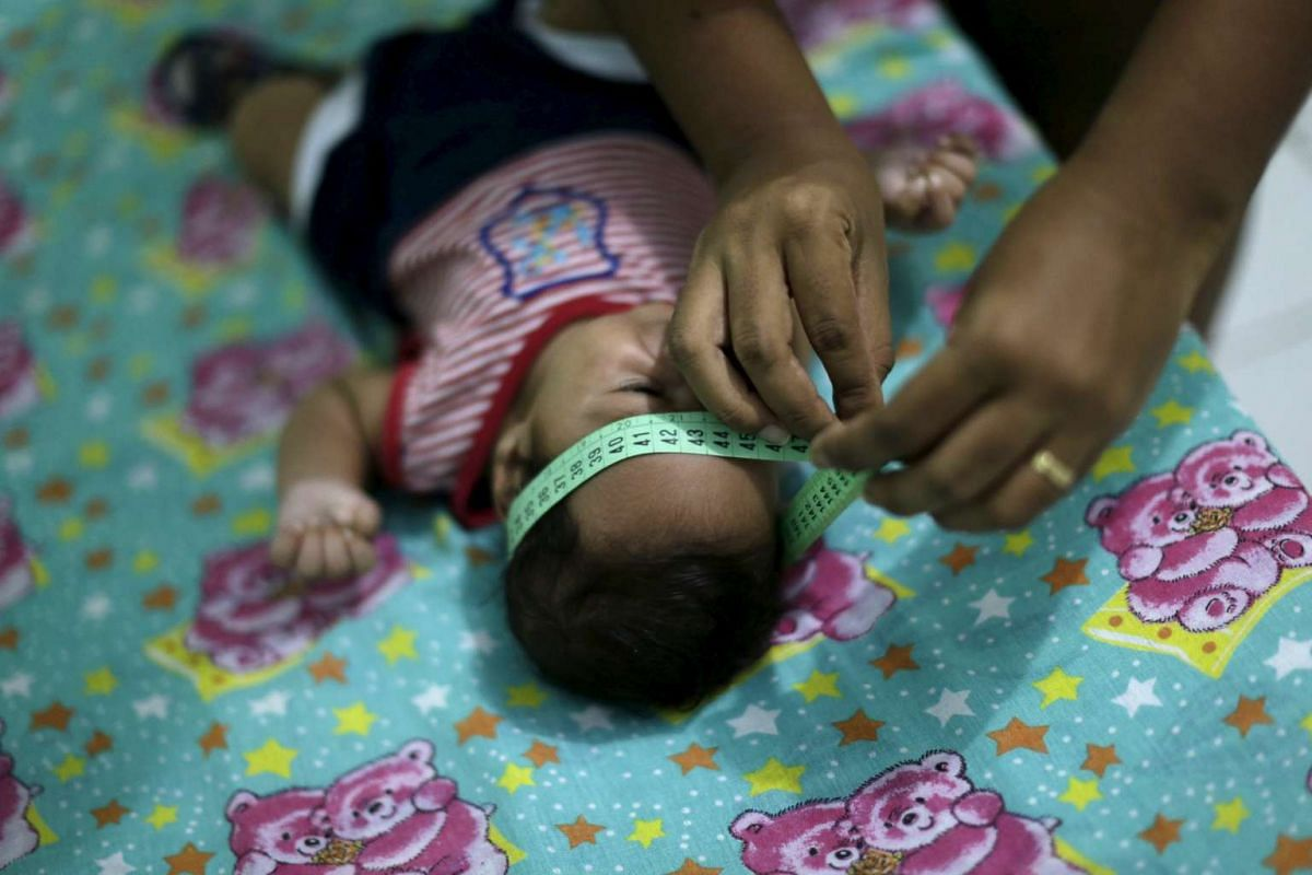 Two-month-old Guilherme Soares Amorim, who was born with microcephaly, gets his head measured by his mother Germana Soares, at her house in Ipojuca, Brazil, on Feb 1.