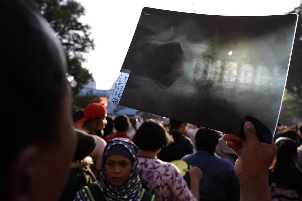 An Indonesian man looks up at the sun through an used X-ray film during a solar eclipse outside the planetarium in Jakarta, Indonesia, on March 9, 2016.