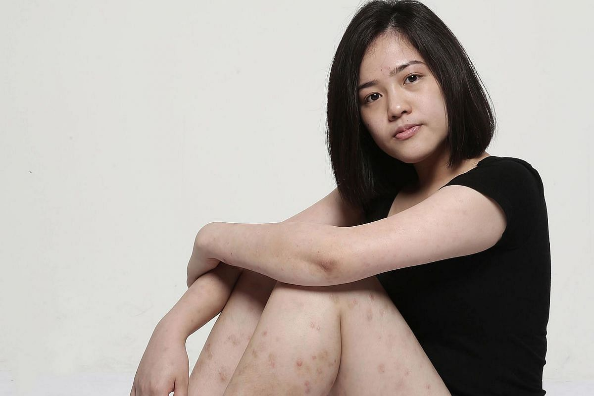 Ms Chan has psoriasis, a condition that causes flaky and scaly skin, as well as red, inflamed patches. The condition, triggered by stress and other factors, at times left her in physical and emotional pain.
