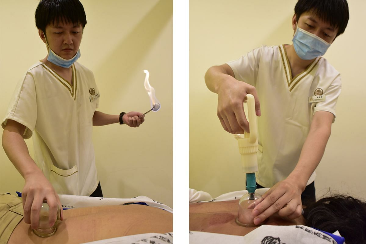 A TCM physician's assistant doing cupping using heat (left) and a vacuum suction pump (right).