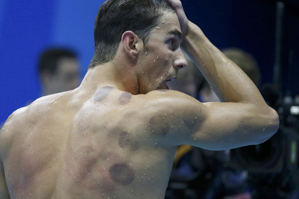 Swimmer Michael Phelps (above), national sprinter Smriti Menon, fitness instructor Rozanne Yap and footballer Jermaine Pennant all sport the tell-tale marks of cupping.