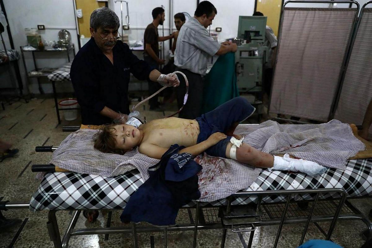 An injured Syrian child receives treatment at a makeshift hospital bed following a reported air stike on the rebel-held town of Douma on August 21.