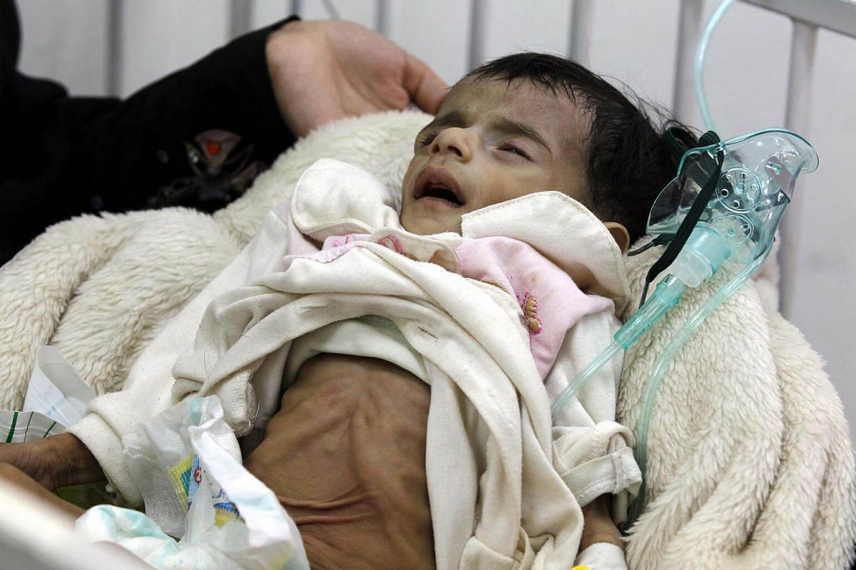 Yemeni child, suffering from malnutrition, receiving treatment at a hospital in Sana'a, Yemen.