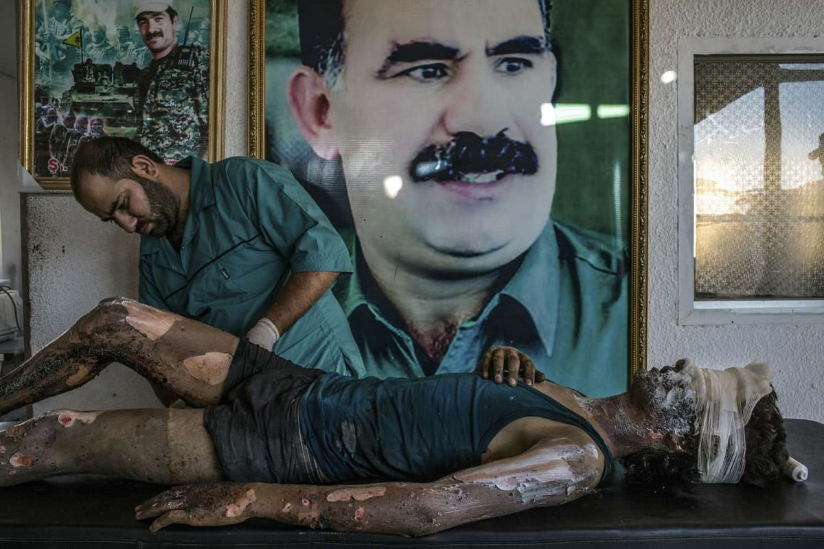 A doctor rubs ointment on the burns of a 16-year-old Islamic State fighter named Jacob in front of a poster of Abdullah Ocalan, the jailed leader of the Kurdistan Workers' Party, at a Y.P.G. hospital compound on the outskirts of Hasaka, Syria on Aug